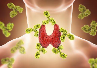 Reversing Hashimoto's Thyroiditis by Dr. Tatiana, ND