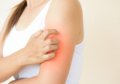 Is Histamine Intolerance the Culprit Behind Your Skin Condition?